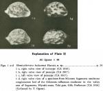 Hemicytherura kajiyamai Hanai, 1957 from the orignal description