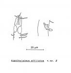 Acantholaimus effilatus Soetaert, 1988