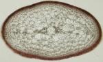 Sphaerococcus coronopifolius