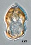 Azadinium spinosum, LM provided by Urban Tillmann