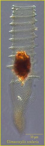 Climacocylis scalaria Brandt, 1906