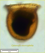 Cyttarocylis eucecryphalus (Haeckel) Kofoid, 1912