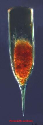 Parundella aculeata (Joergensen, 1924)