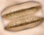 Coscinodiscus rediatus