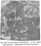 Placopsilina cenomana