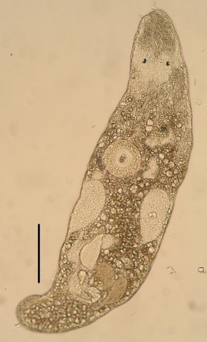 Ceratopera gracilis (Trigonostomidae, Dalytyphloplanida, Rhabdocoela, Platyhelminthes