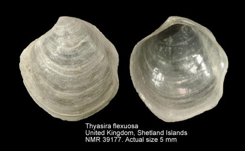 Thyasira flexuosa