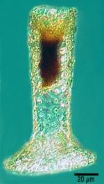 Tintinnopsis brandti