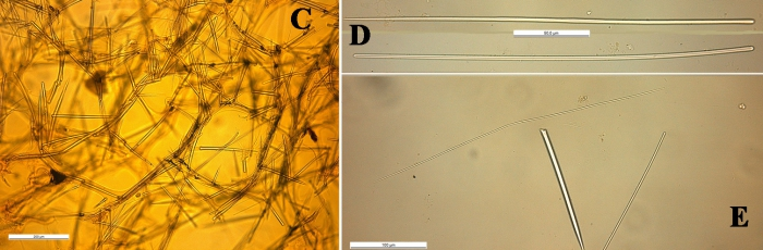 Clathria toxistricta skeleton and spicules
