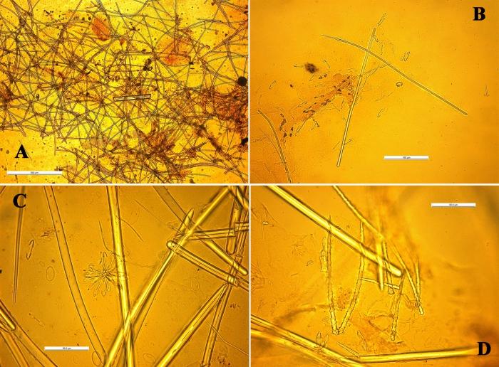 Cornulotrocha cheliradians skeleton and spicules