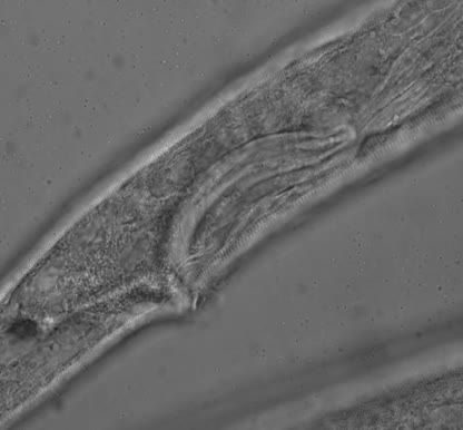 Sabatieria sp., Part: spicules