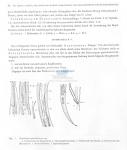Wieseria glandulosa