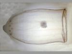 Aglantha digitale (Müller, 1776)