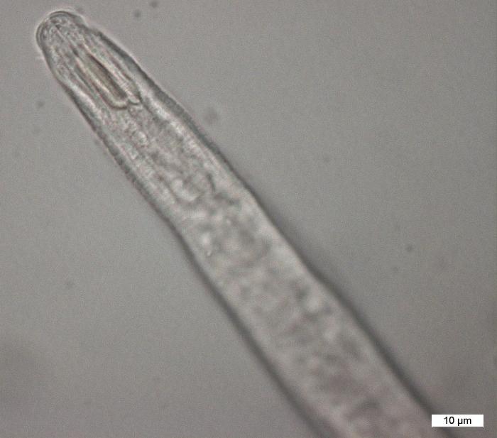 Diplopeltula bulbosa