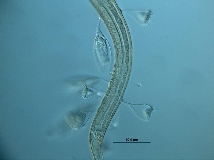 Desmodorella sp.,with ciliate hitch-hikers