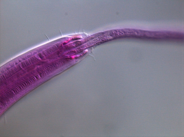 Sphaerolaimus sp. eats Amphimonhystrella sp.